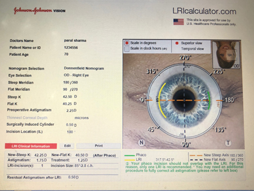 Cataract doctor Gurgaon