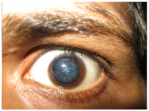Cataract Specialist in Gurgaon
